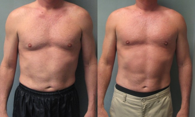 Gynexin Gynecomastia Treatment